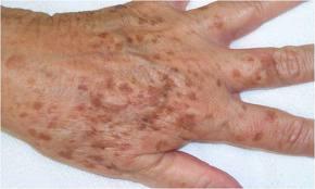 dark spots treatment